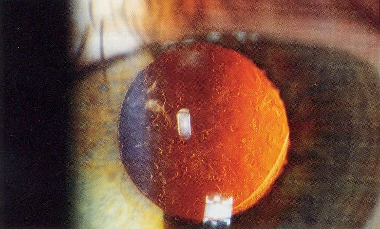 Posterior capsular opacification YAG laser