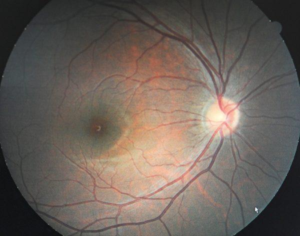 glaucoma photo